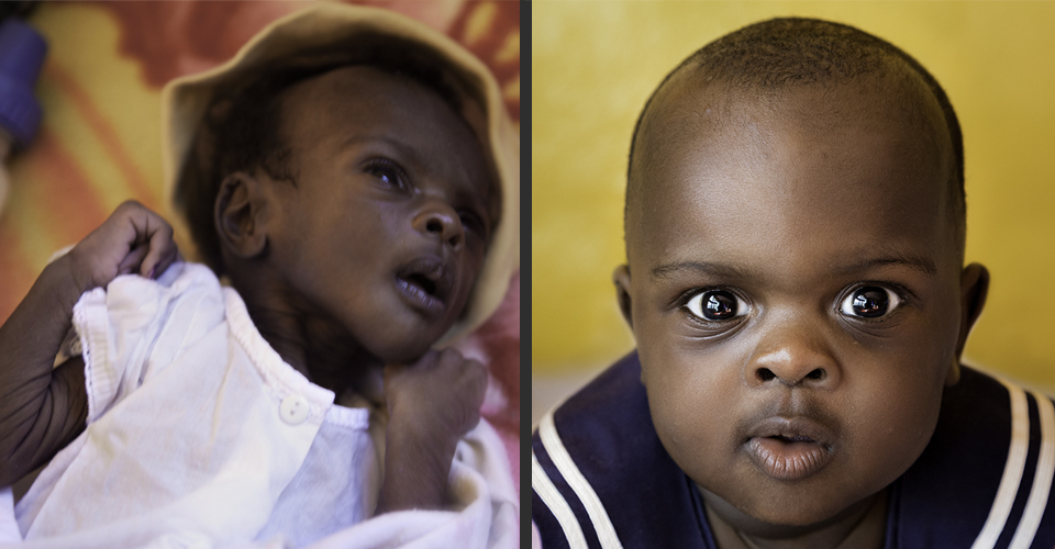 baby_tensai_beforeafter